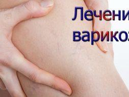 Современные методики в борьбе с варикозом в клинике «Мед Сити»